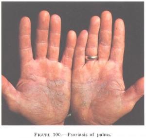 Psoriasis_of_the_palms