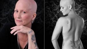 cancer-fotografia-cancer-leucemia-terri-shaver