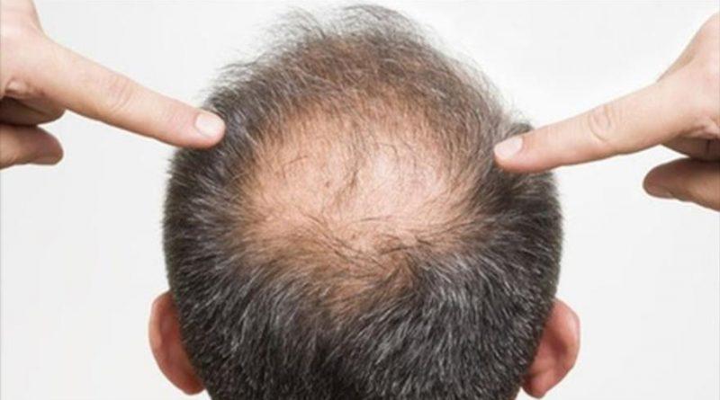 El medio público de la liberación de los cabello
