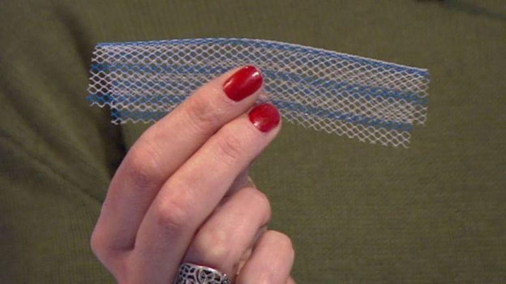 El aspecto de un implante de malla pélvico.