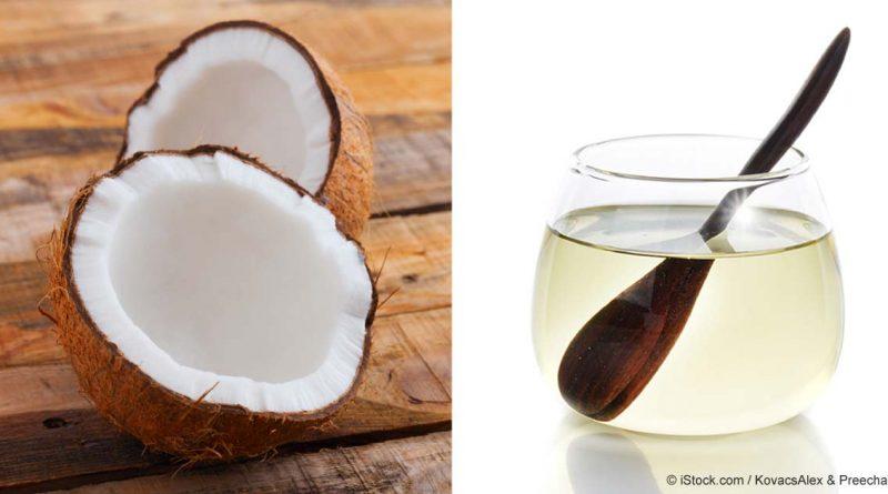 Cómo el Aceite de Coco Podría Beneficiar a Su Salud y Bienestar